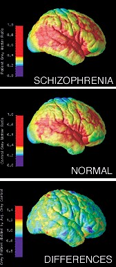 Brain Differences in schizophrenia