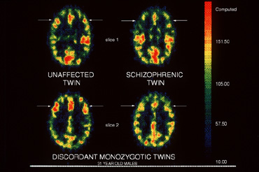 Schizophrenia 'made up of eight specific genetic disorders'