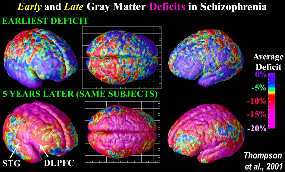 Schizophrenia vs Multiple Personality Disorder ...