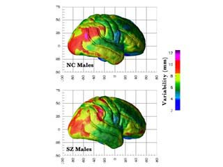 An Overview of Schizophrenia and Similar Psychotic ...
