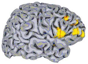 nimh.brain.4.21.05.jpg
